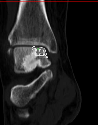 Implant Sizing on CT Scan