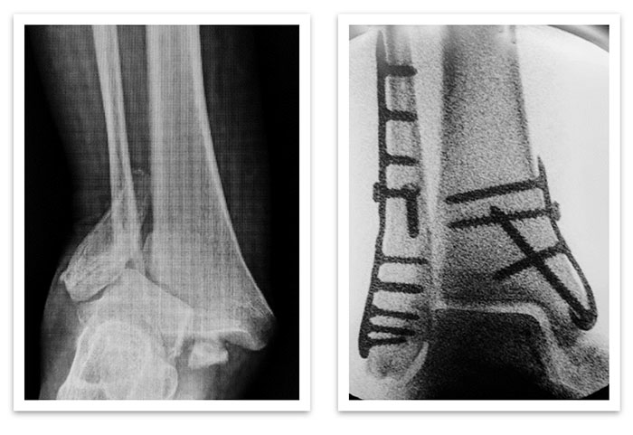 ankle fracture xray