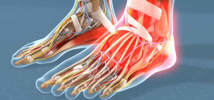Arthritis of the Foot/Ankle