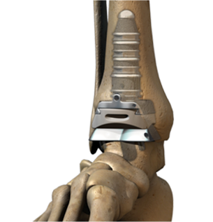 INBONE® Total Ankle Replacement