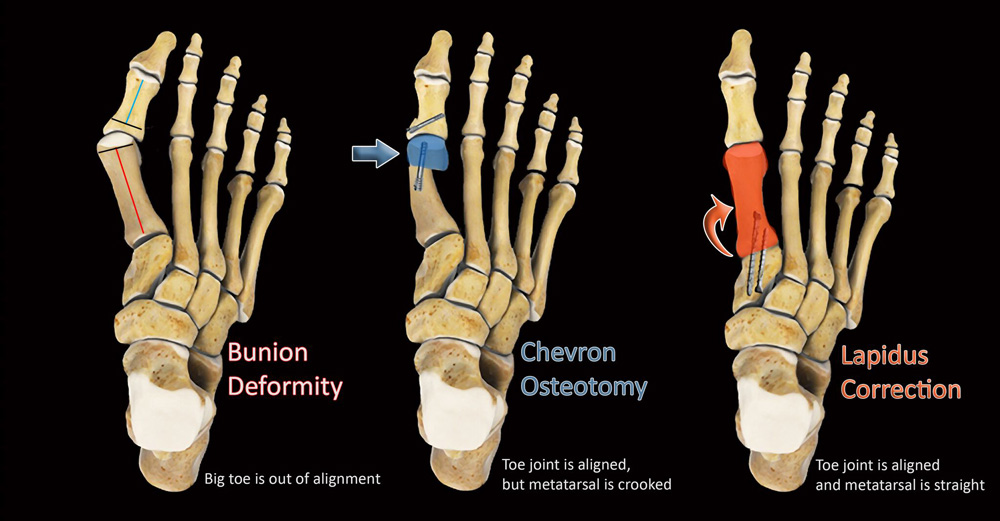 chevron osteotomy