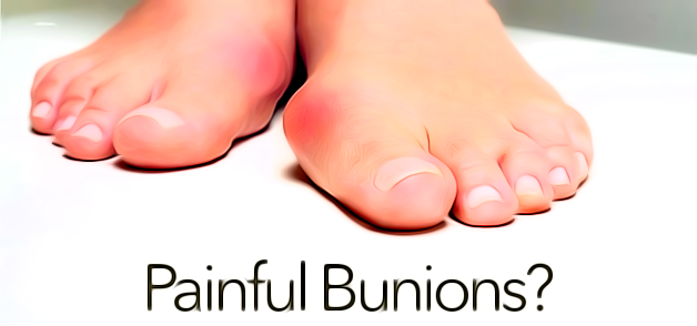 Painful Bunions?