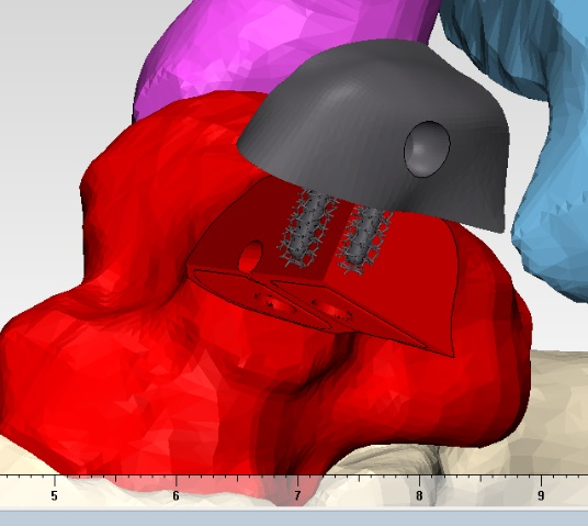 Computer Rendering of the Custom Implant Technique