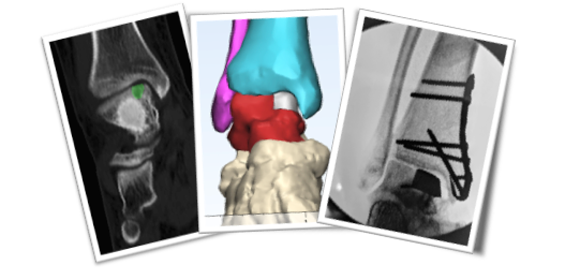 Customized Partial Ankle Replacements
