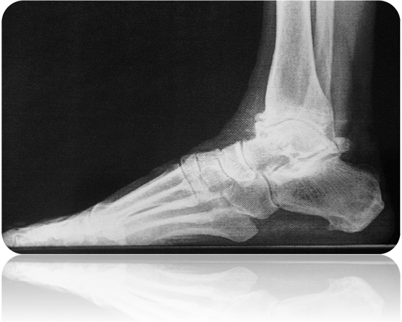 End stage ankle arthritis