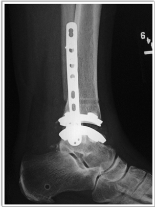 Zimmer Biomet Trabecular Metal Total Ankle Replacement Xray