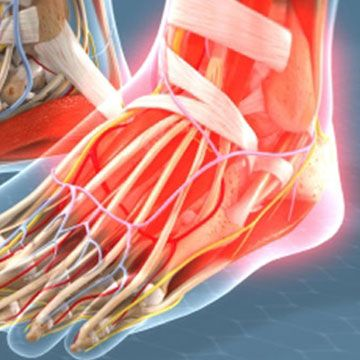 Ankle Replacement vs. Fusion for Arthritis